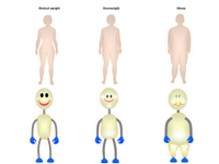 Human shapes in obesity PPT Slide