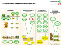Inflammatory breast cancer PPT Slide
